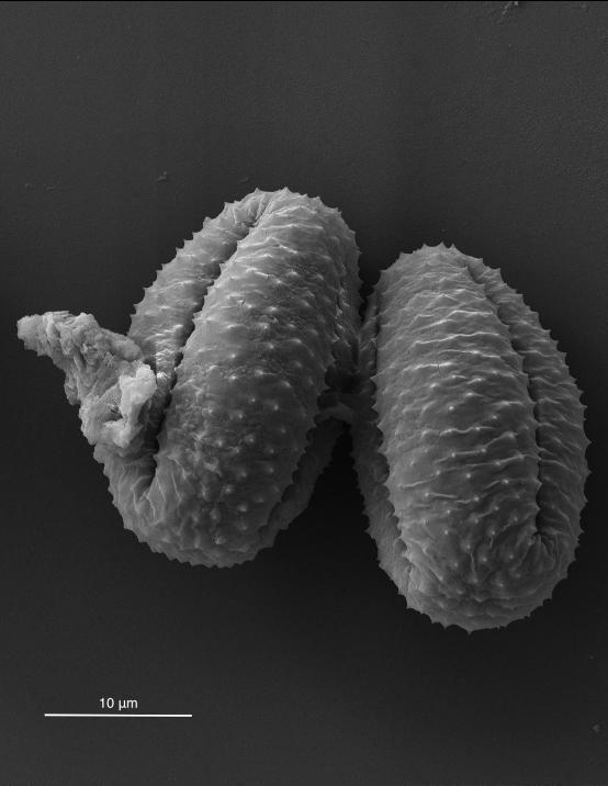 SEM image of pollen